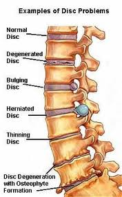 spine_injury_pic.jpg